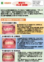 第25号-歯並びとむし歯・歯周病の関係について-(クリックするとPDFでご覧いただけます)