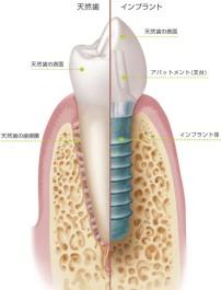 天然歯とインプラントの比較