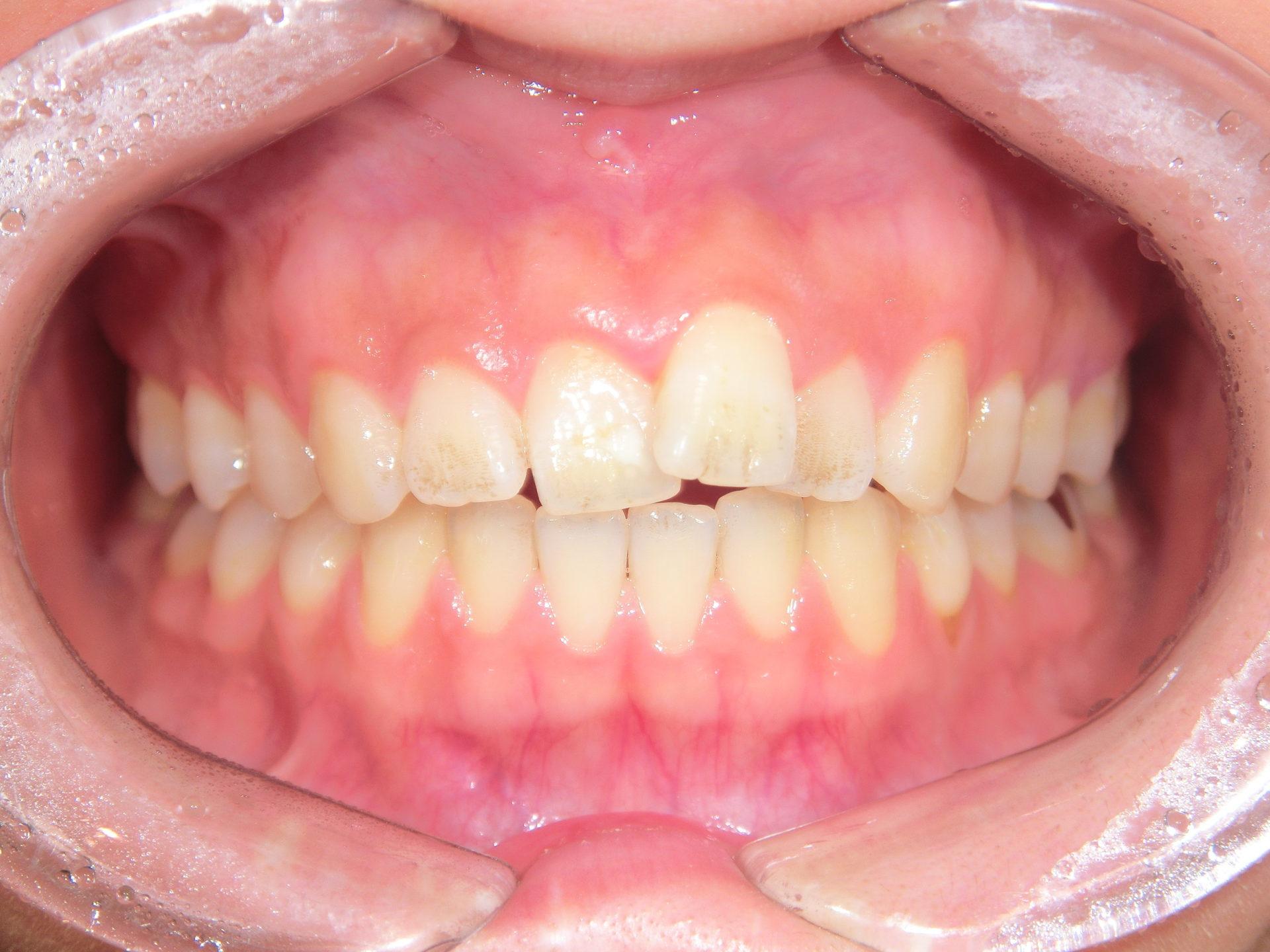 マウスピース矯正 ~左上前歯~