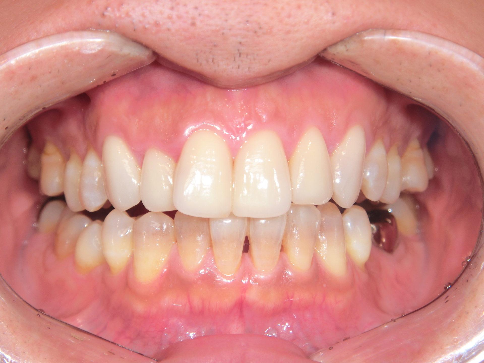 ホワイトコート ~下顎前歯部~