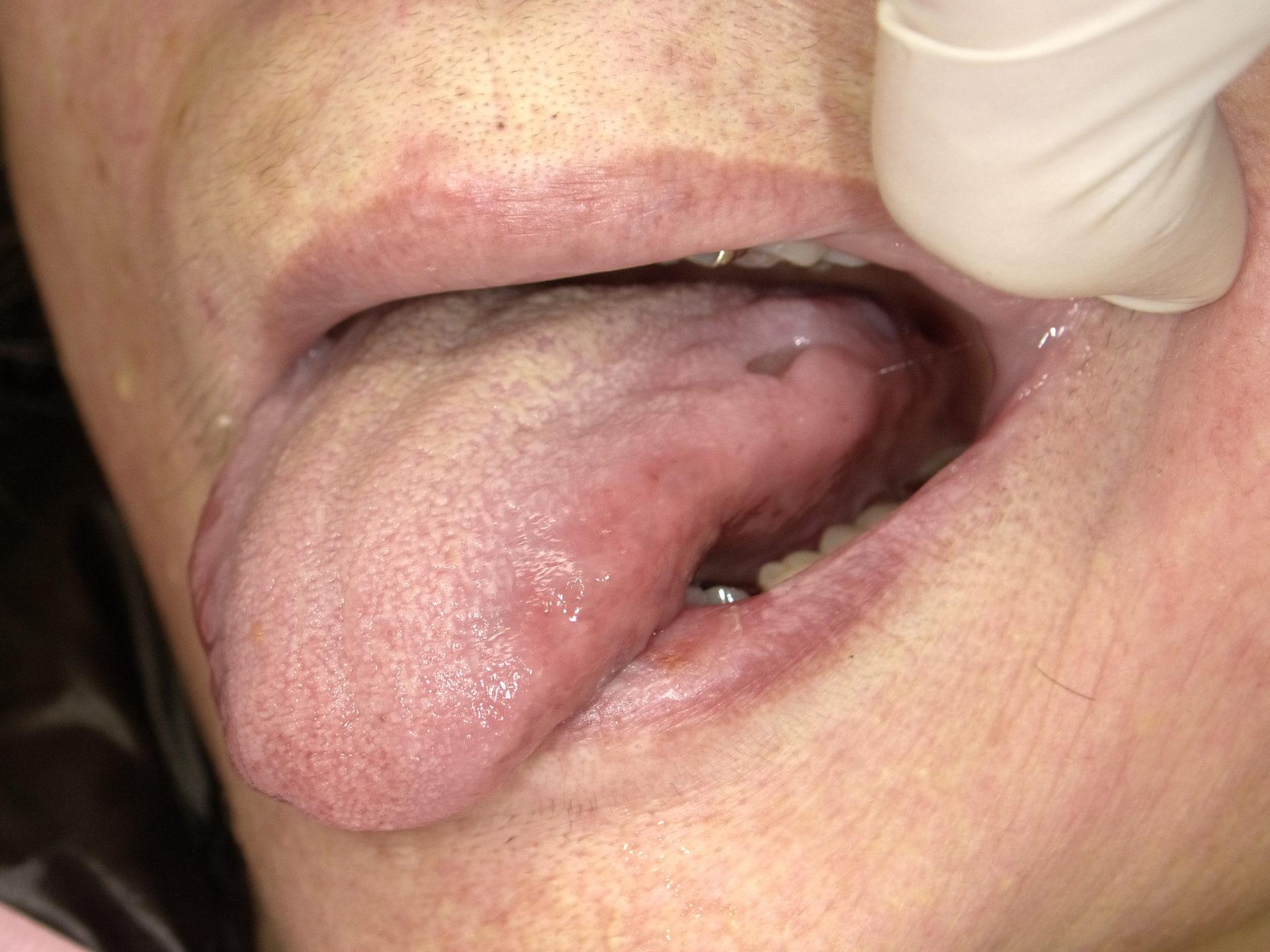 プラズマレーザー治療 ~舌縁裂傷~