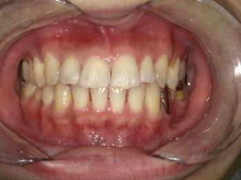 ダイレクトボンディング ~前歯の隙間~