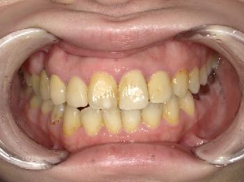 ホワイトコート ~上顎前歯部~