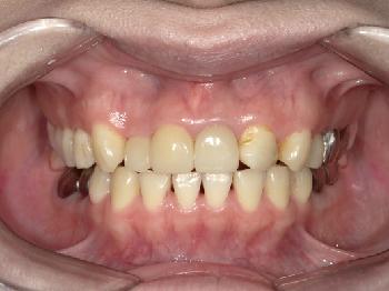 セラミックによる審美補綴治療 ~上の前歯3本~