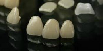 セラミックによる審美治療~上前歯4本~