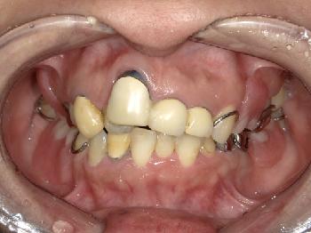 ジルコニアクラウンおよびノンクラスプデンチャーによる審美治療 ~上顎前歯と臼歯~