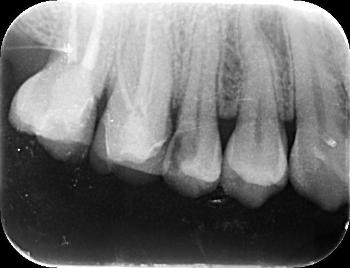 プラズマレーザー治療~永久歯のむし歯~