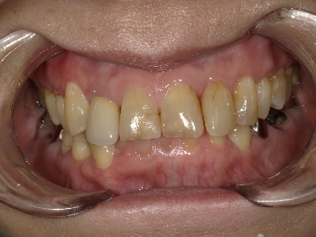 セラミックによる審美治療 ~右上側切歯~