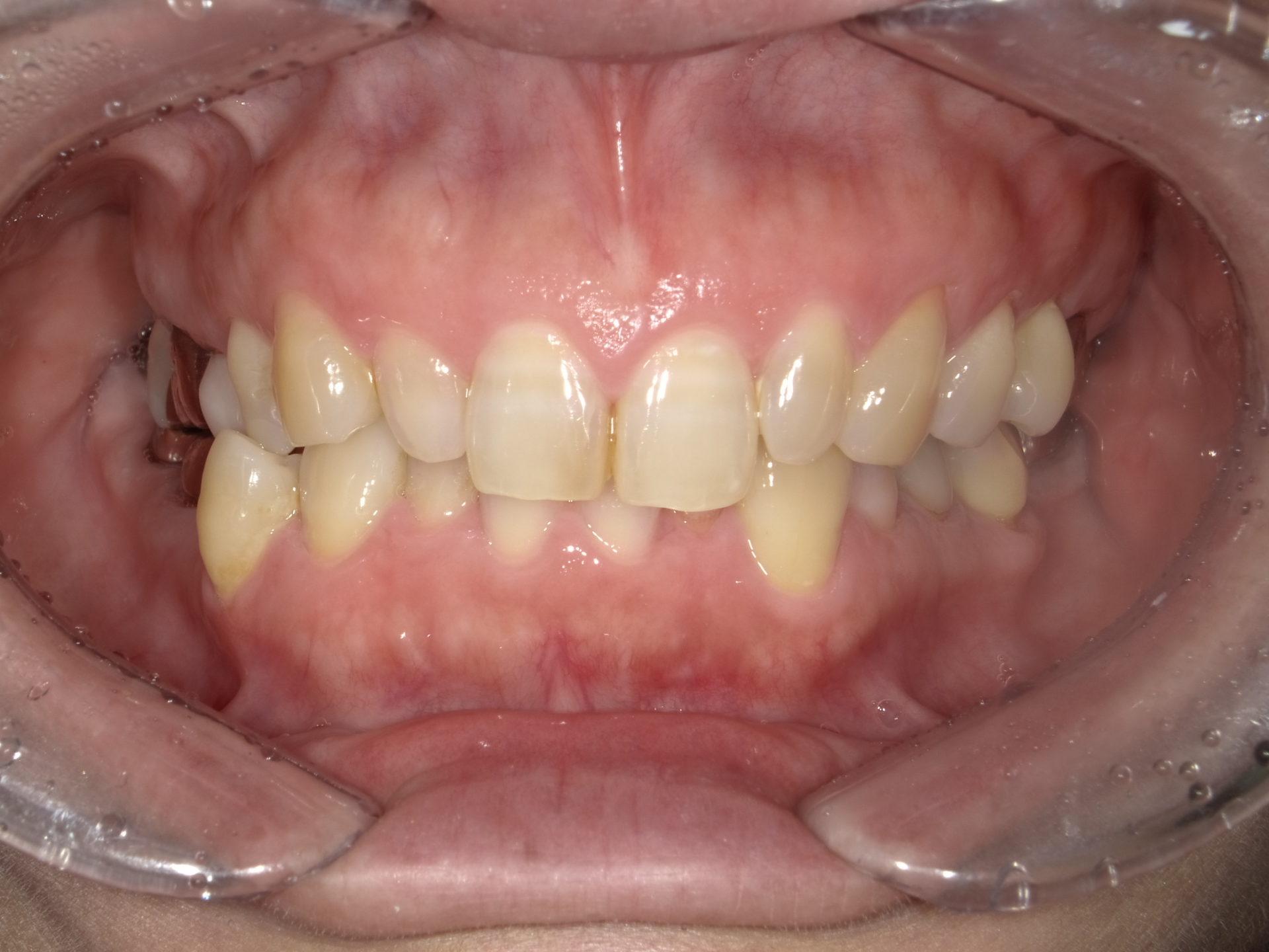 ダイレクトボンディング ~左右上顎側切歯~