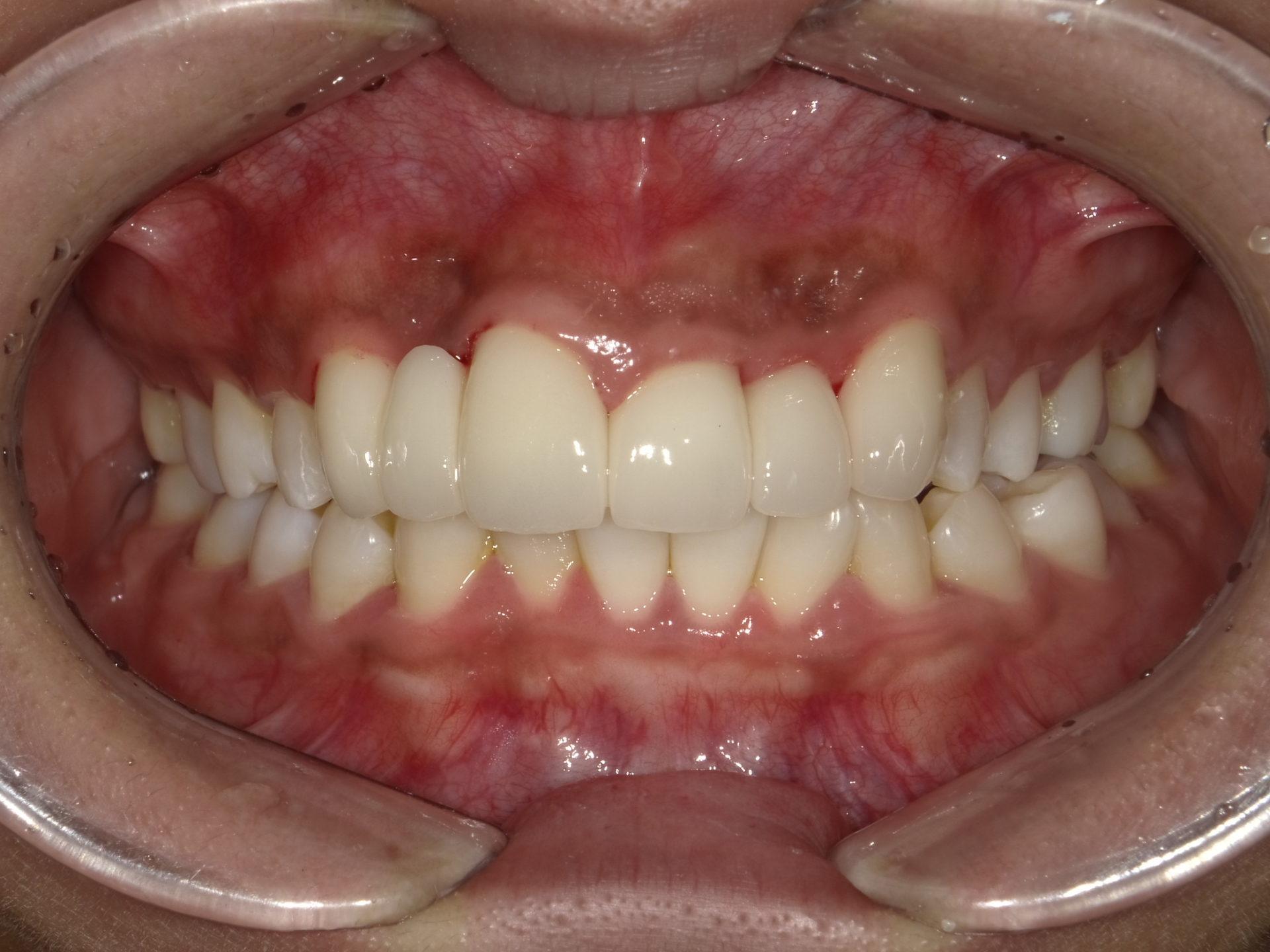 セラミックによる審美治療 上顎前歯6本