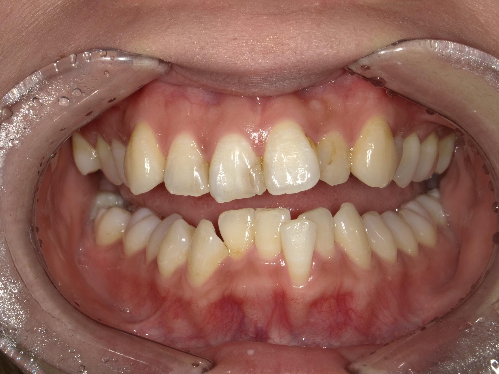 セラミックによる審美治療 上下顎8本